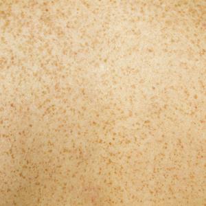 iperpigmentazioni trattamento