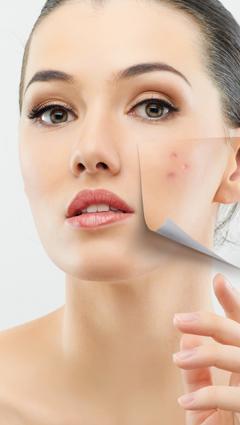 acne come trattarla