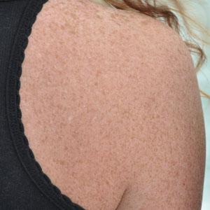 macchie solari pelle prevenire elminare