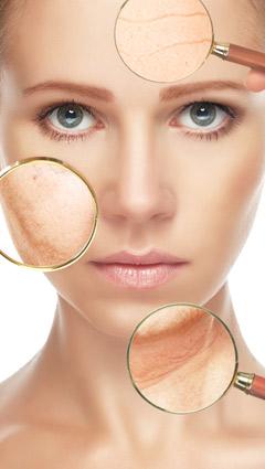 invecchiamento cutaneo e acido glicolico