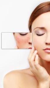 couperose pelle cosa sono riconoscere e prevenire