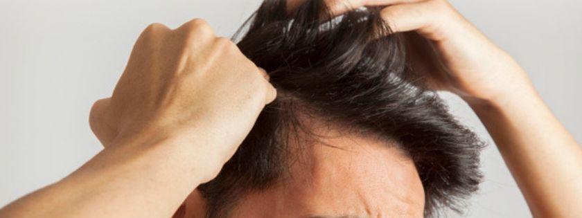 seborea cuoio capelluto caduta capelli forfora shampoo